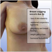 breast-lift-implants-surgery03