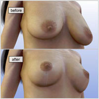 breast-lift-surgery015