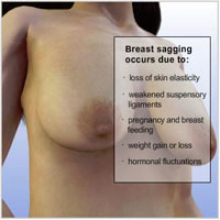 breast-lift-surgery03