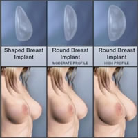 saleen-breast-implants-areola-incision02