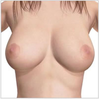 saleen-breast-implants-areola-incision07