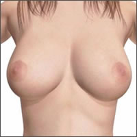 saleen-breast-implants-under-breast-incision07