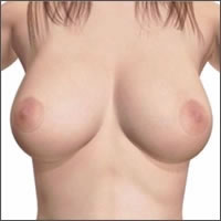 silicone-breast-implants-areola-incision07