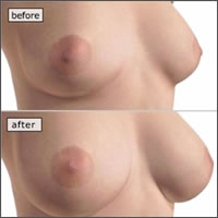 silicone-breast-implants-areola-incision09